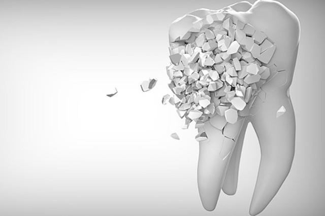 Zahnpflege